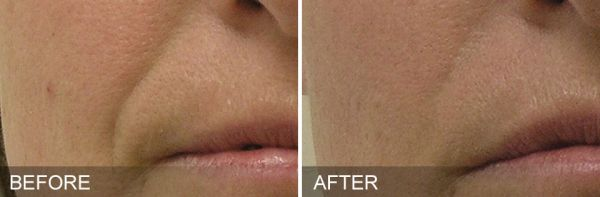 Before & After HydraFacial Treatment